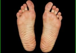 how to get rid of bad smelly feet